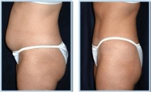 Perdere peso prima dopo donna 2 - www.scuoladirespiro.org